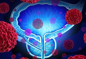 غده پروستات در مردان و هر آنچه باید در مورد آن بدانید